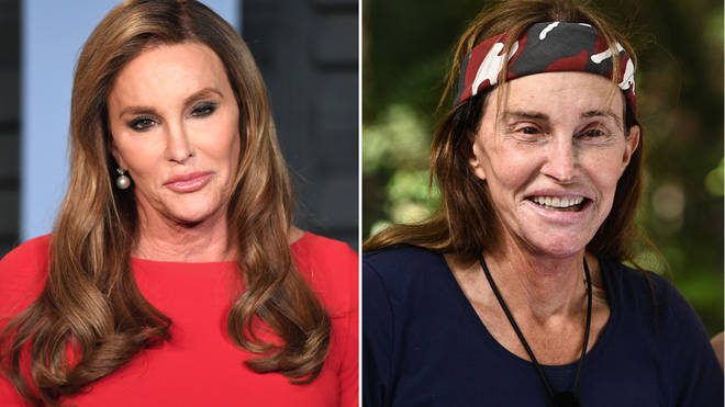Caitlyn Jenner has obviously dropped weight as well