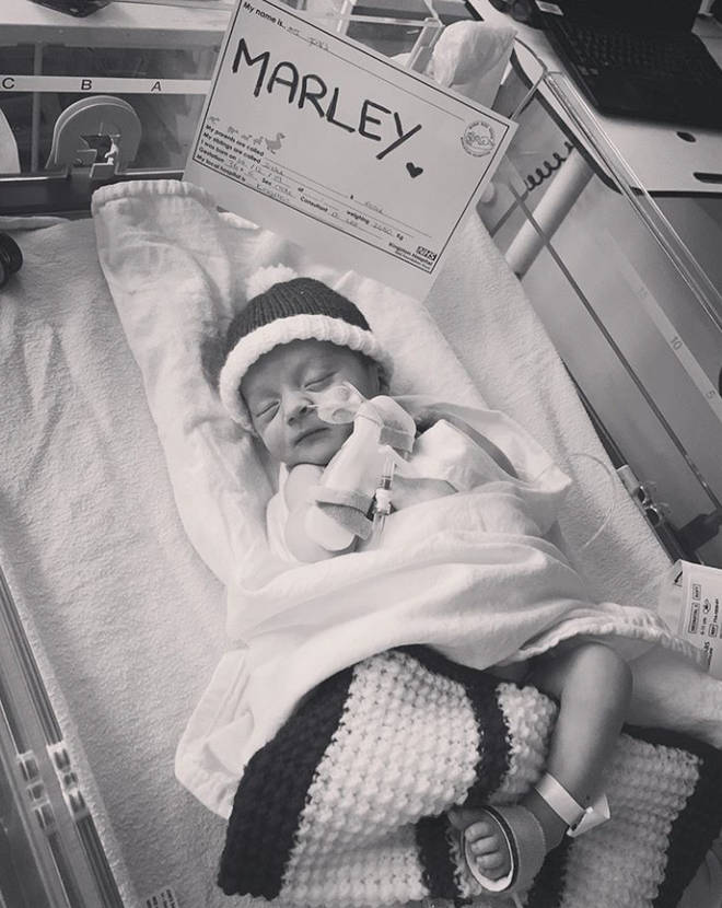 Marley was born three weeks early