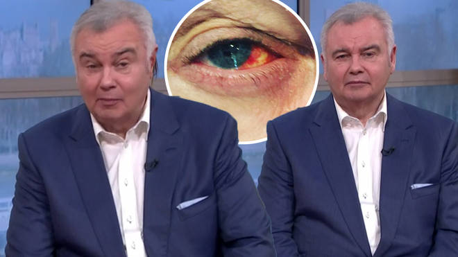 Eamonn Holmes turned to fans for advice after his eye became bloodshot