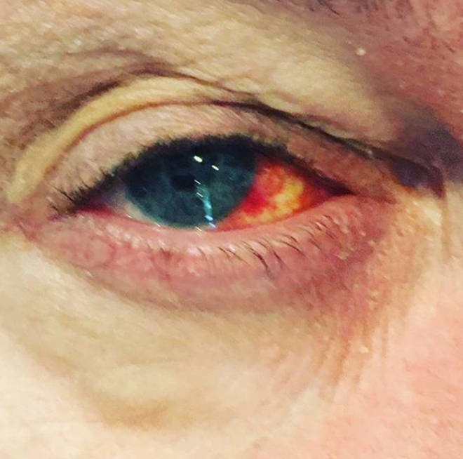 Eamonn Holmes appeared to have a burst vessel in his eye