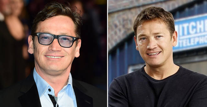 Sid Owen was hit in the head by a golf ball while on holiday in Thailand