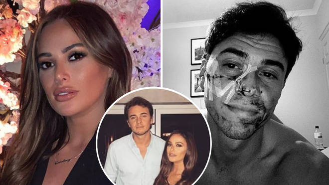 Courtney Green's ex-boyfriend was reportedly attacked with a pair of scissors.