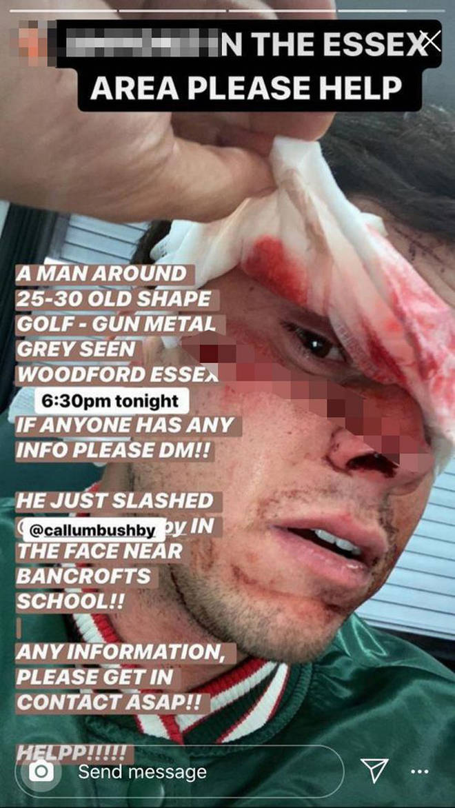The TOWIE shared a photo of Callum's injured face on Instagram.