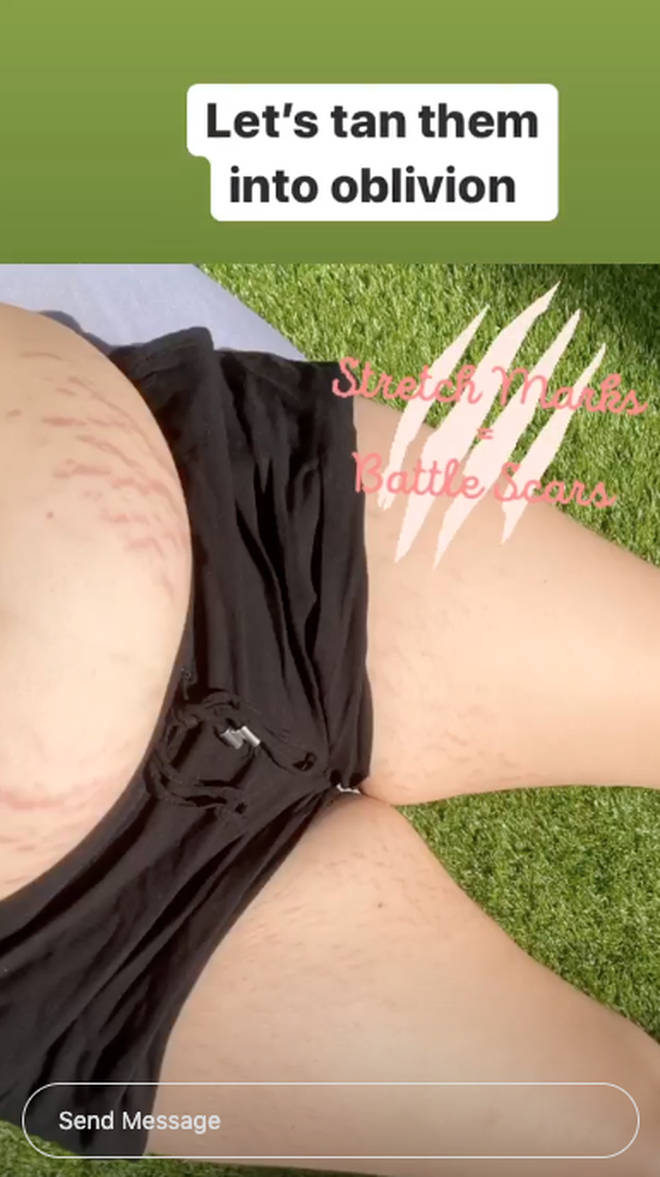 Melissa Suffield has revealed her stretch marks on Instagram