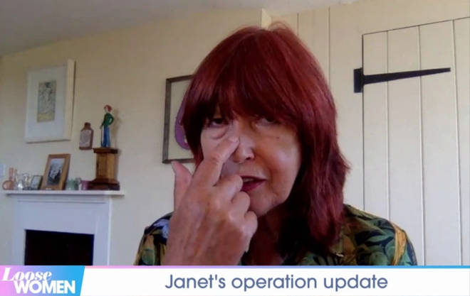 Janet is having surgery on her nose this week