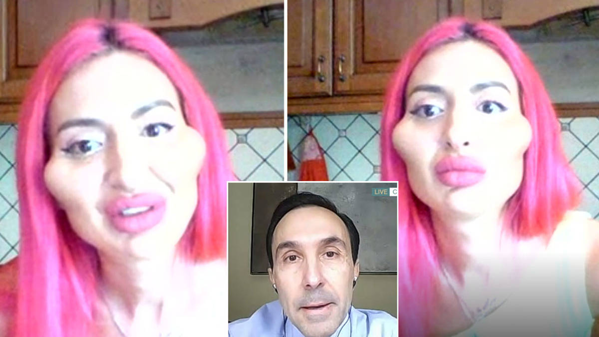 Woman who injects filler into her own face clashes with cosmetic surgeon