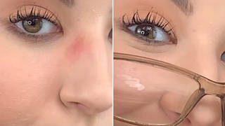 You can fix the problem simply, using only one makeup product