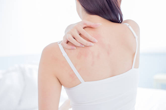 21 per cent of people who had a skin rash and tested positive for COVID-19 said the rash was their only symptom
