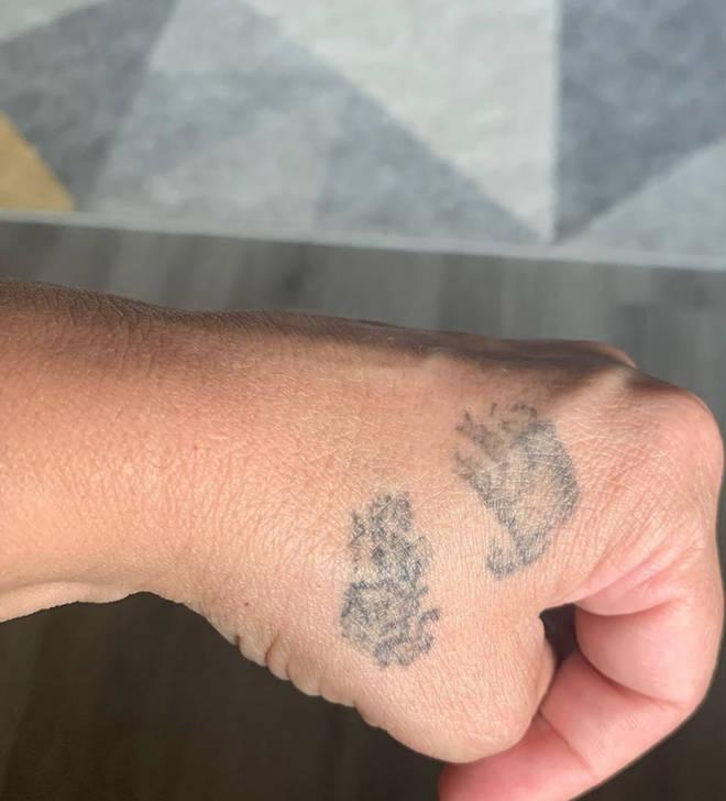 Sue Radford has Alfie's handprints tattooed on her hand