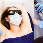 Tips when getting laser hair removal