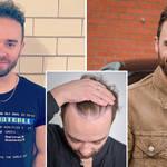 Jack P Shepherd has had a second hair transplant
