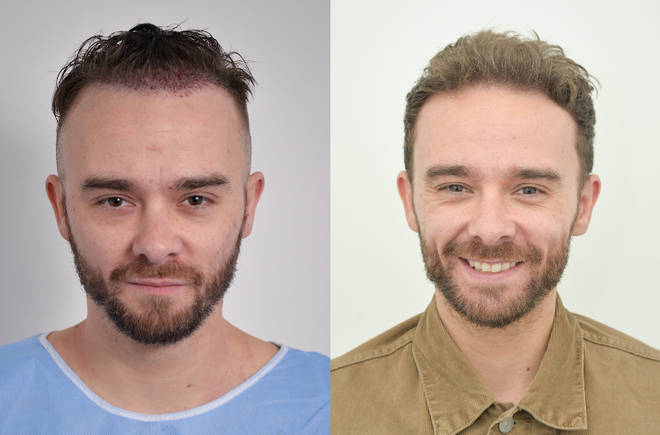 Jack P Shepherd has revealed his second hair transplant