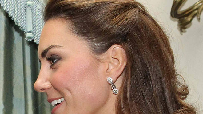 Kate's scar was spotted after she wore her hair in an up-do at a charity event in 2011