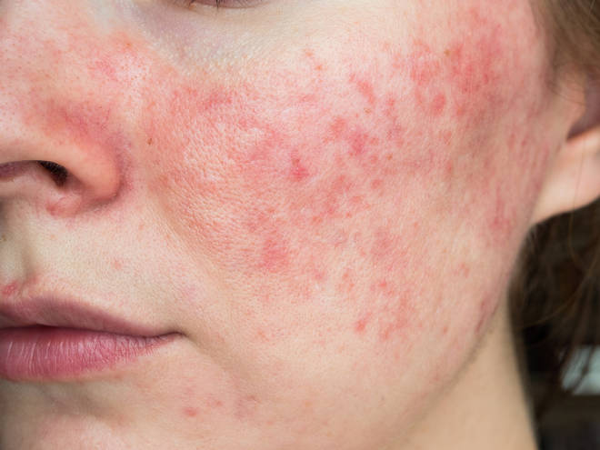 It is unknown what causes rosacea in adults