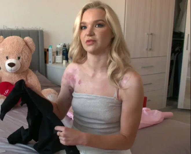 Abbie suffered burns while filming a YouTube tutorial