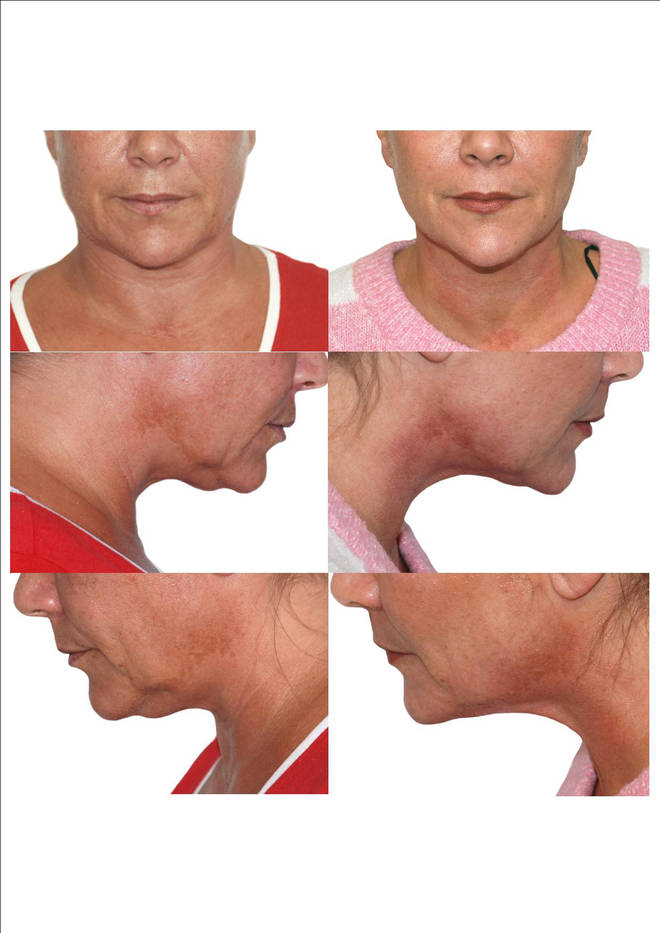 Sam Fox was delighted with the results of her treatments
