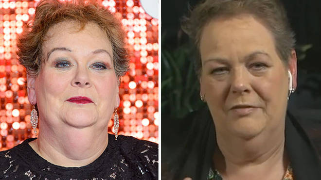 Anne - pictured left in January - has lost a stone while in the I'm A Celeb jungle
