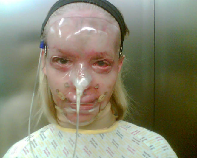 Katie shared this pic from nine years ago just after the acid attack