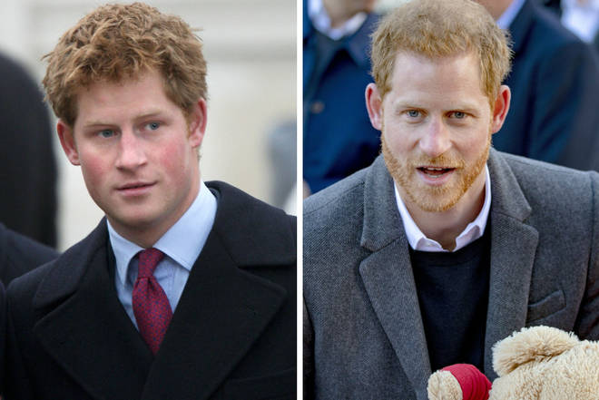 Prince Harry before and after