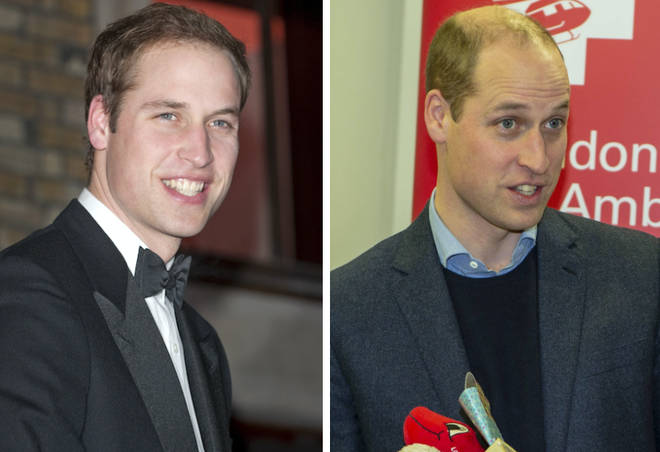 Prince William before and after
