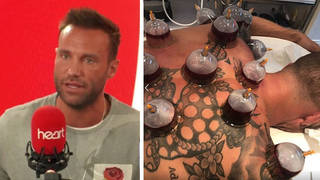 Calum Best has a lot of positive things to say about the controversial treatment