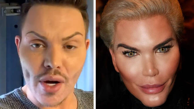 Bobby Norris has been compared to the Brazilian surgery addict