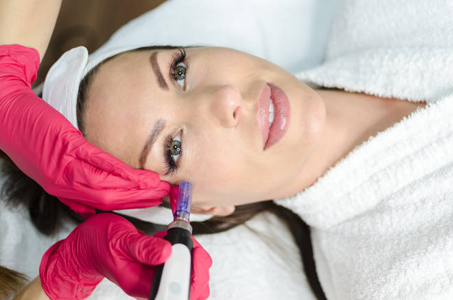 Microneedling has been heralded as the solution to all sorts of ageing-related woes
