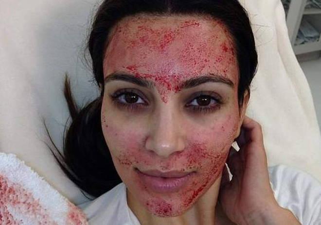 Kim Kardashian made the 'Vampire Facial' popular