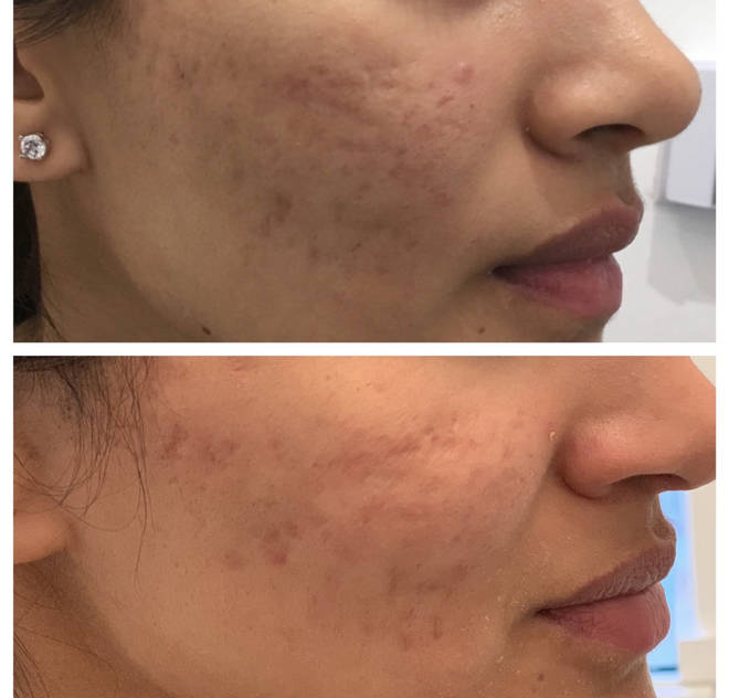 This picture shows before and after results from a microneedling procedure at Regents Park Aesthetics