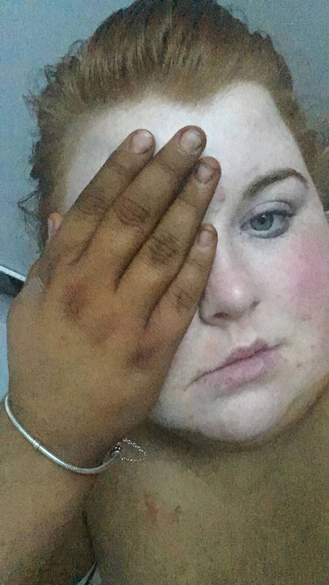 Her 'shocked' pictures she shared to social media made friends think she'd been kidnapped