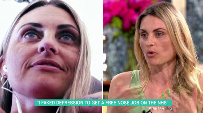 Carla's nose (shown before the operation on the left) doesn't look too different now