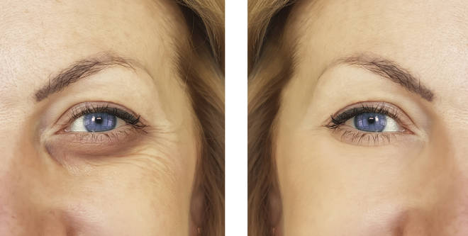 Here's how you can get rid of your eye bags permanently in