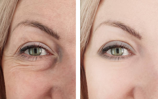 Getting rid of your eyeballs can make you seem more 'awake' and give a youthful appearance