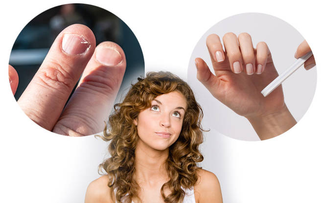Your nails can reveal a lot about your health