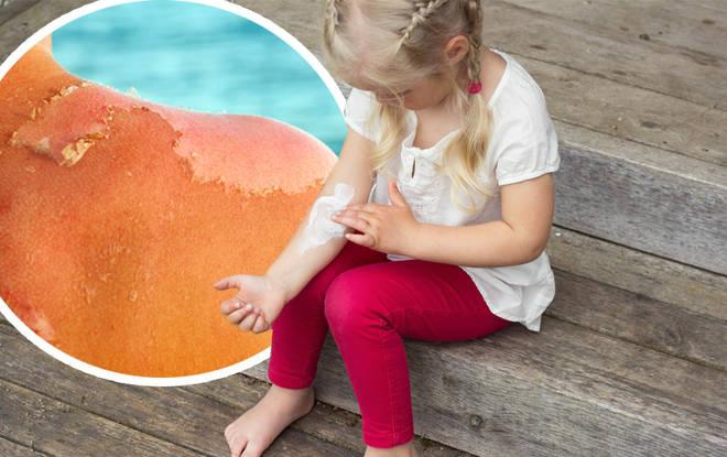 Children have been left sunburnt
