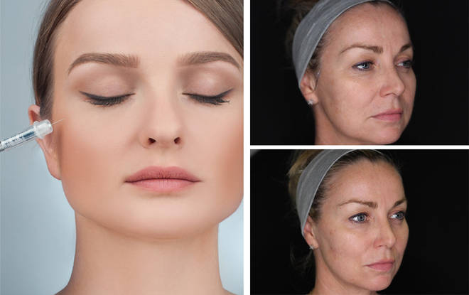 How Does Facial Contouring Work Does Filler Make You Look Younger