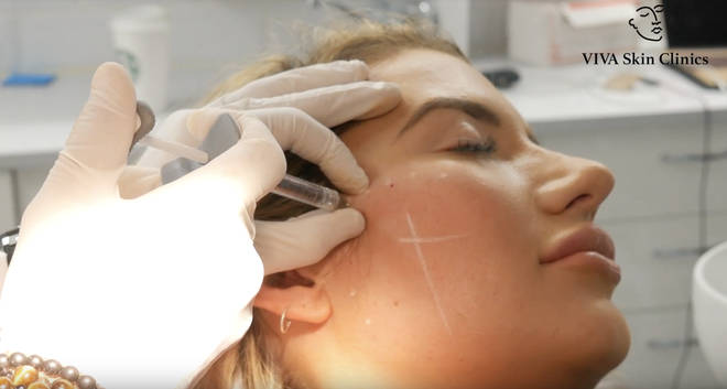 Cheek filler is placed in multiple 'dots' across the cheekbone