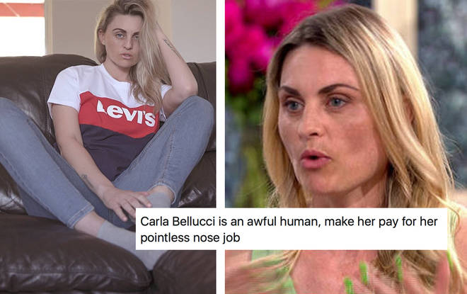 Carla spoke out about her decision to go ahead with the nose job