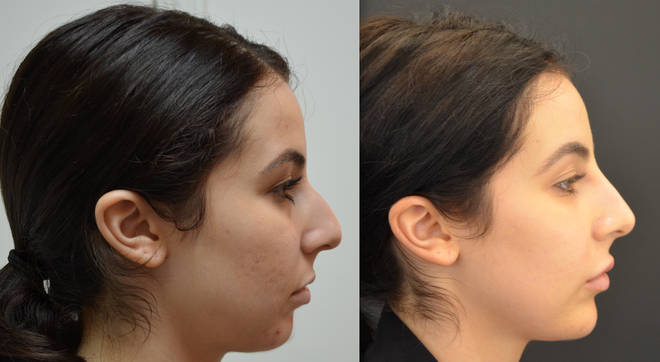 This lady's profile was transformed after filler in her chin and nose