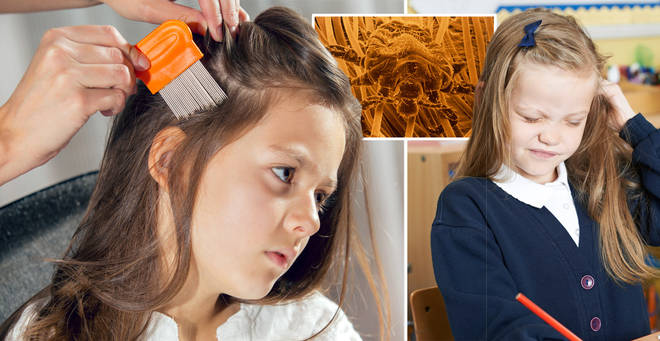 'Super nits' could be in your child's school