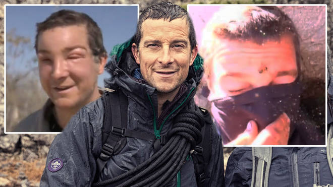Bear Grylls has suffered another serious reaction to a bee sting