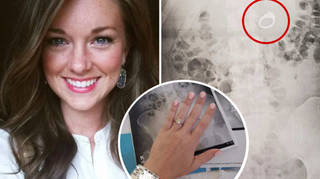 """Jenna Evans accidentally swallowed her engagement ring after dreaming she needed to """"eat it to protect it""""."""