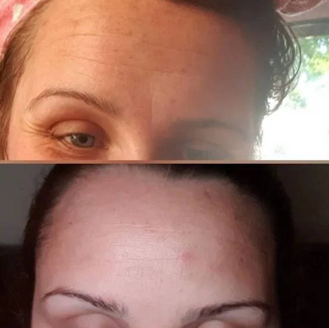 Kayleigh posted before and after pictures on the product page