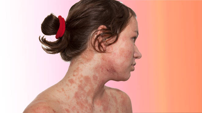Eczema is incredibly painful - and sufferers might have been given misleading advice