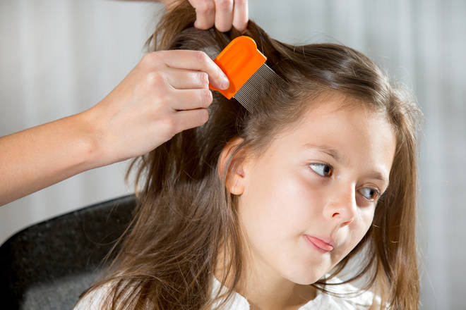 There are plenty of ways to get rid of head lice
