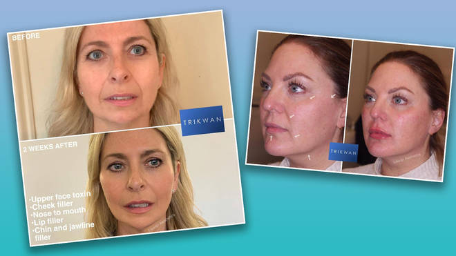 These women rejuvenated their look with liquid face lifts