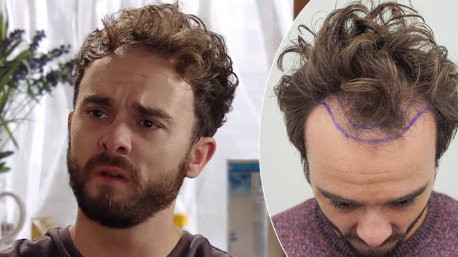 Jack Shepherd has reportedly been fined for plugging his hair transplant