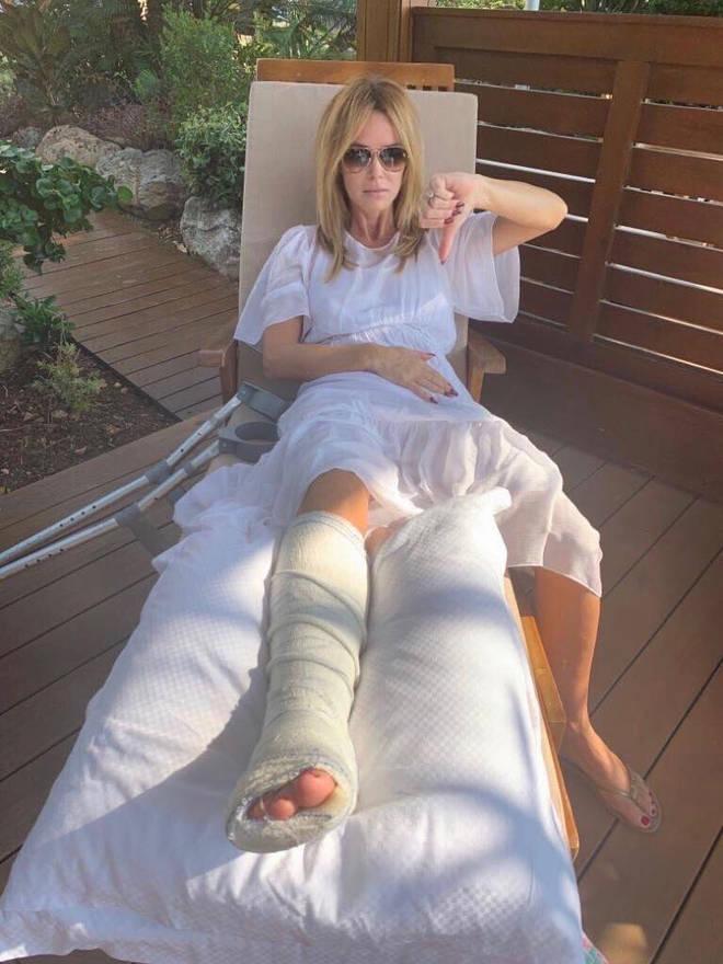 Amanda has shared her first snap of the broken leg