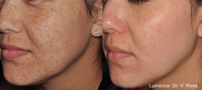The strong IPL treatment removes freckles and brown marks from skin