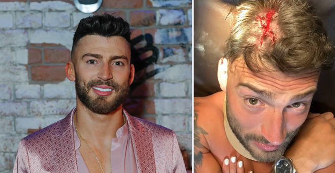 Jake Quickenden told his Instagram followers after his terrifying ordeal
